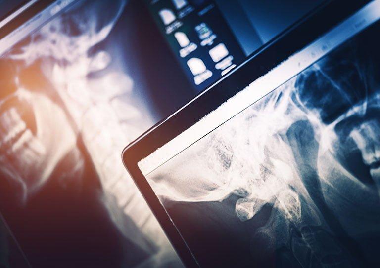 Röntgenfilmit skannaus